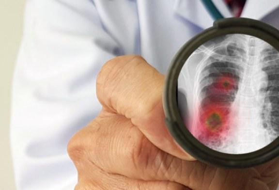 美專家3年前預警武漢P4實驗室病毒或逃逸 新證據指新型冠狀病毒來自軍方