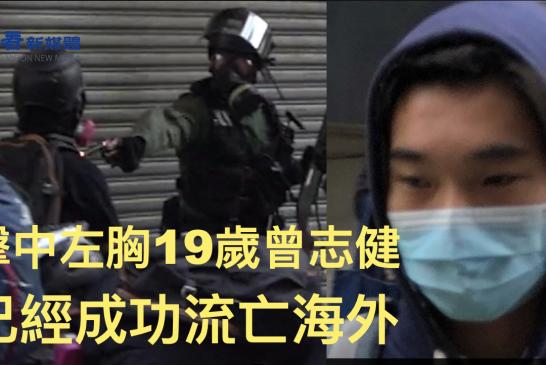 【被迫流亡】反送中遭港警槍擊 19歲學生已經成功流亡海外