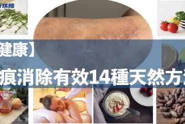 【健康】疤痕消除14種有效天然方法