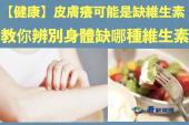 【皮膚健康】皮膚癢可能是缺維生素 教你辨別身體缺哪種維生素